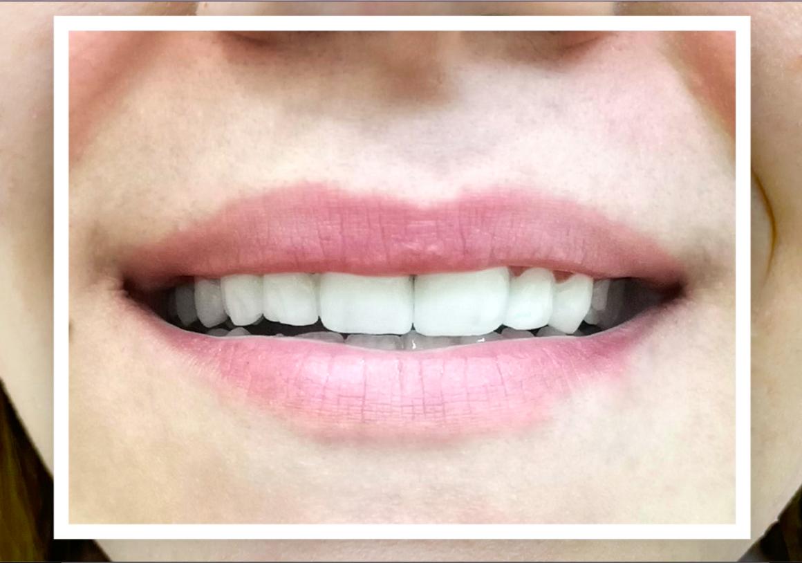 SMILE MAKEOVER CON LE FACCETTE DENTALI IN COMPOSITO (SENZA LEVIGATURA) IN SOLO DUE VISITE